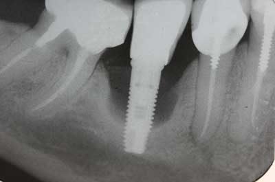 Impianto dentale rigetto sintomi