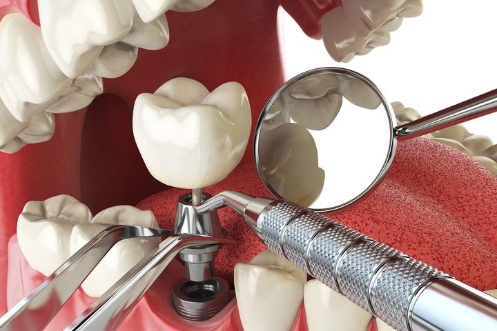 Impianto dentale intervento - Dentista Croazia 4Smile