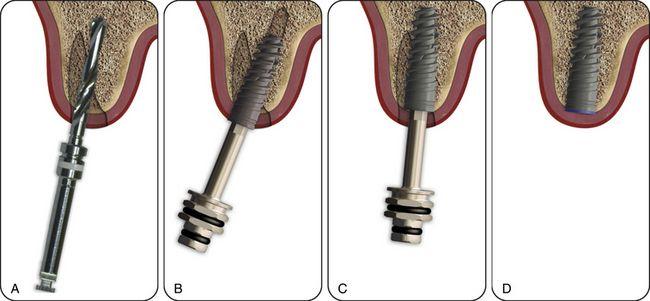 Impianto dentale immediato - Dentista Croazia 4Smile