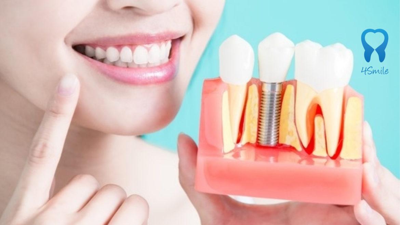 Impianti dentali in Croazia – prezzi, fasi, esperienze